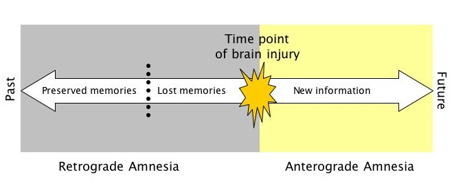 retrograde and anterograde amnesia essay